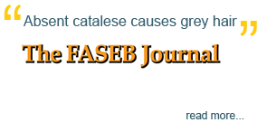 'Absent catalase causes gray hair,' The FASEB Journal